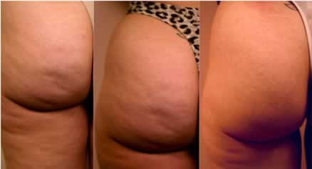 cellulite-stages.jpg