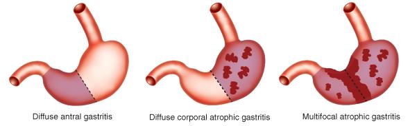 gastritis.png