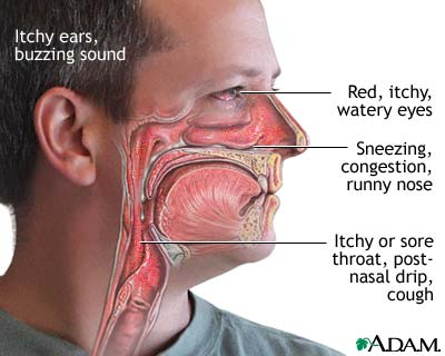 symptoms-food-allergy.jpg